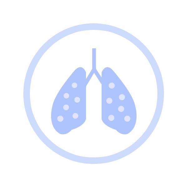 luchtreinigers-fijnstof-ionisator